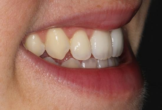 Adult treatment with Incognito braces : 6 months to close the gap