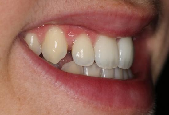 Adult treatment with Incognito braces : before treatment